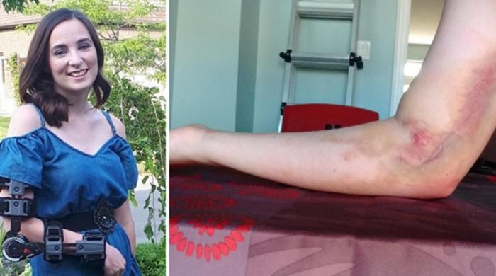 غلط طریقے سے خون نکالنے پر نوجوان لڑکی کا ہاتھ مفلوج ہوگیا